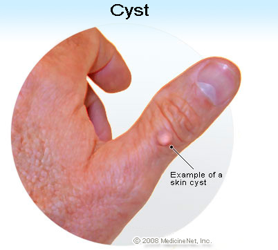 cysts, Sphenoid