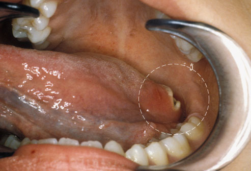 Don't ignore mouth sores that linger for weeks; they could be cancer.